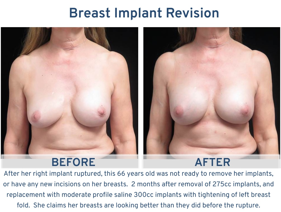 Alamo Plastic Surgery Breast Implant Revision San Antonio TX - 66 year old ruptured implant correction