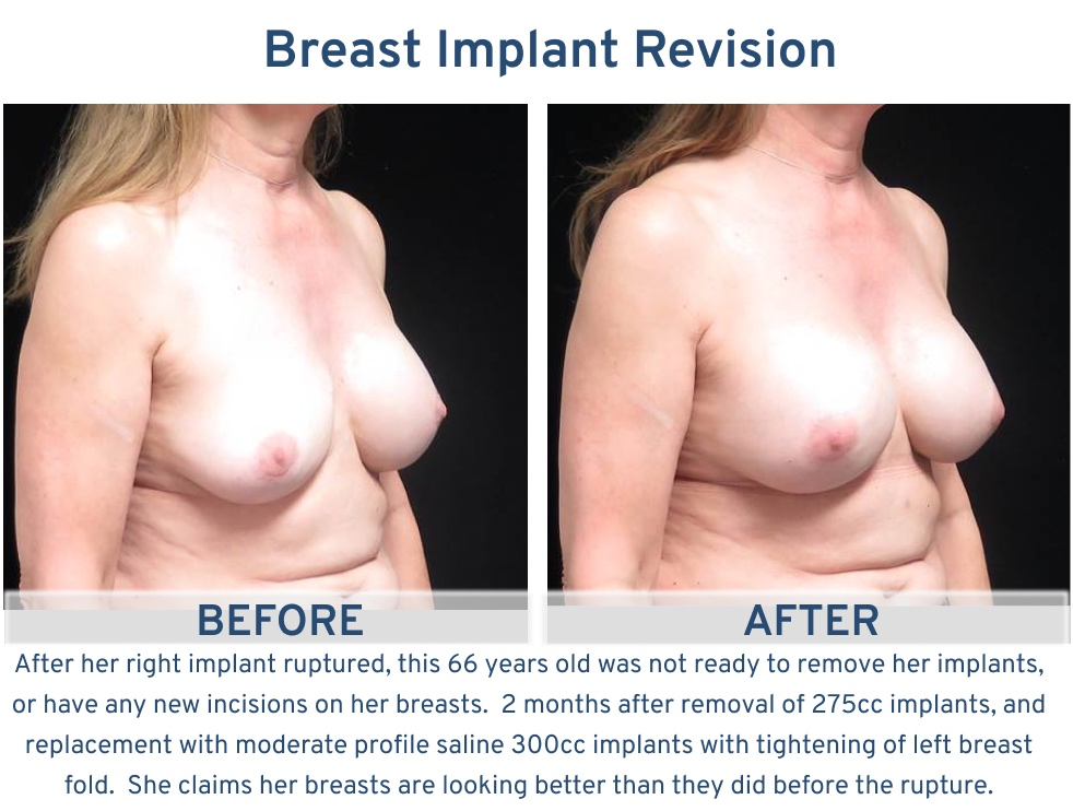 Alamo Plastic Surgery Breast Implant Revision San Antonio TX - 66 year old ruptured implant correction oblique