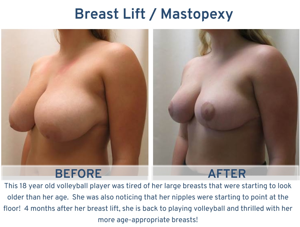 Alamo Plastic Surgery San Antonio TX Breast Lift (Mastopexy) - 18 year old start vollyeball player oblique