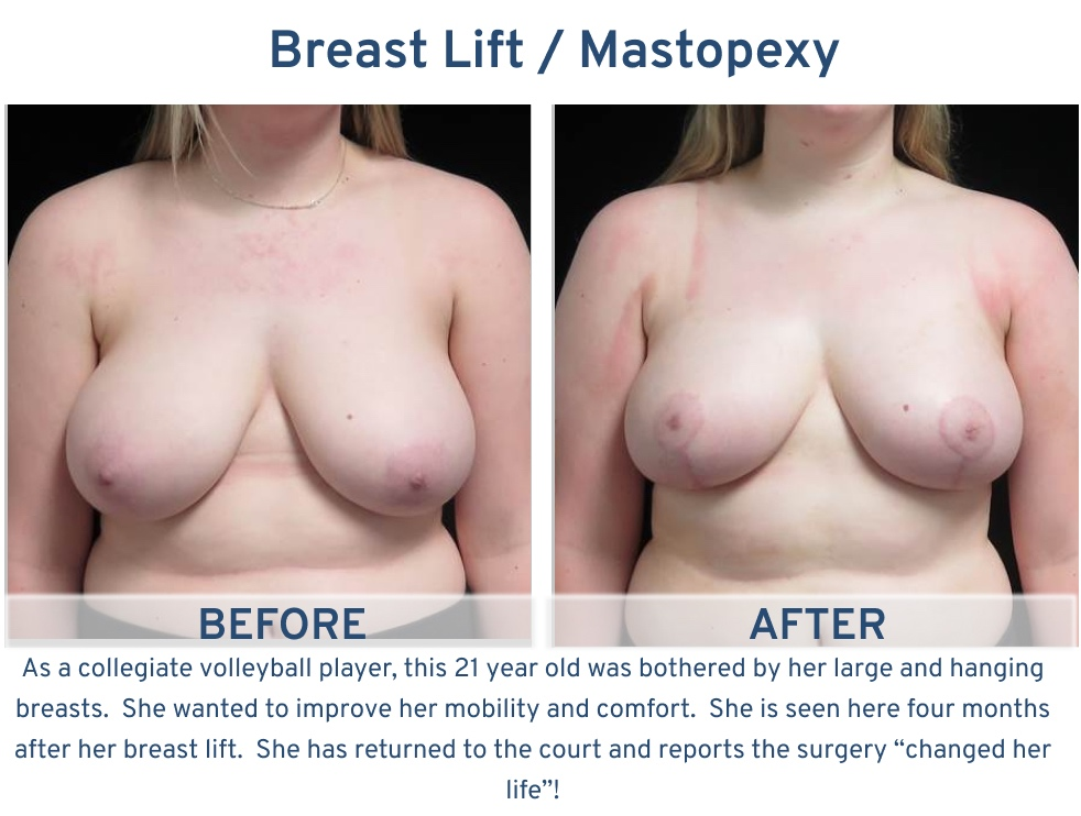Alamo Plastic Surgery San Antonio TX Breast Lift (Mastopexy) - 21 year old collegiate volleyball player