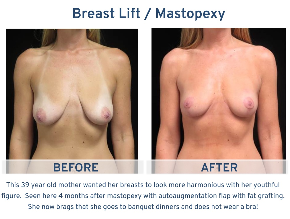 Alamo Plastic Surgery San Antonio TX Breast Lift (Mastopexy) - 39 year old doesn't have to wear a bra