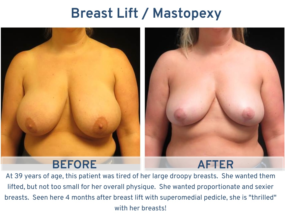 Alamo Plastic Surgery San Antonio TX Breast Lift (Mastopexy) - 39 year old large droopy breasts