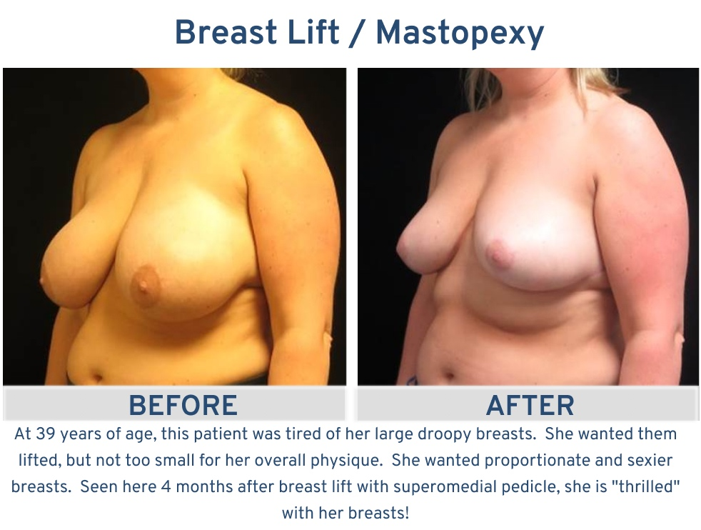 Alamo Plastic Surgery San Antonio TX Breast Lift (Mastopexy) - 39 year old large droopy breasts oblique