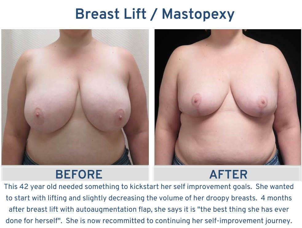 Alamo Plastic Surgery San Antonio TX Breast Lift (Mastopexy) - 42 year old kickstart to self improvement