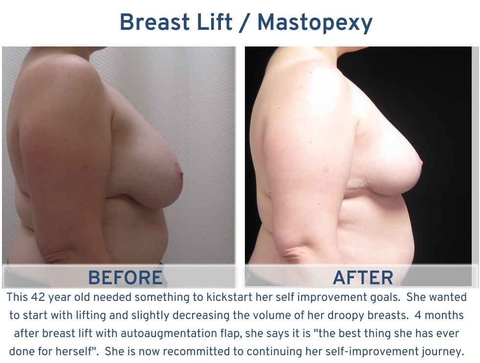 Alamo Plastic Surgery San Antonio TX Breast Lift (Mastopexy) - 42 year old kickstart to self improvement side