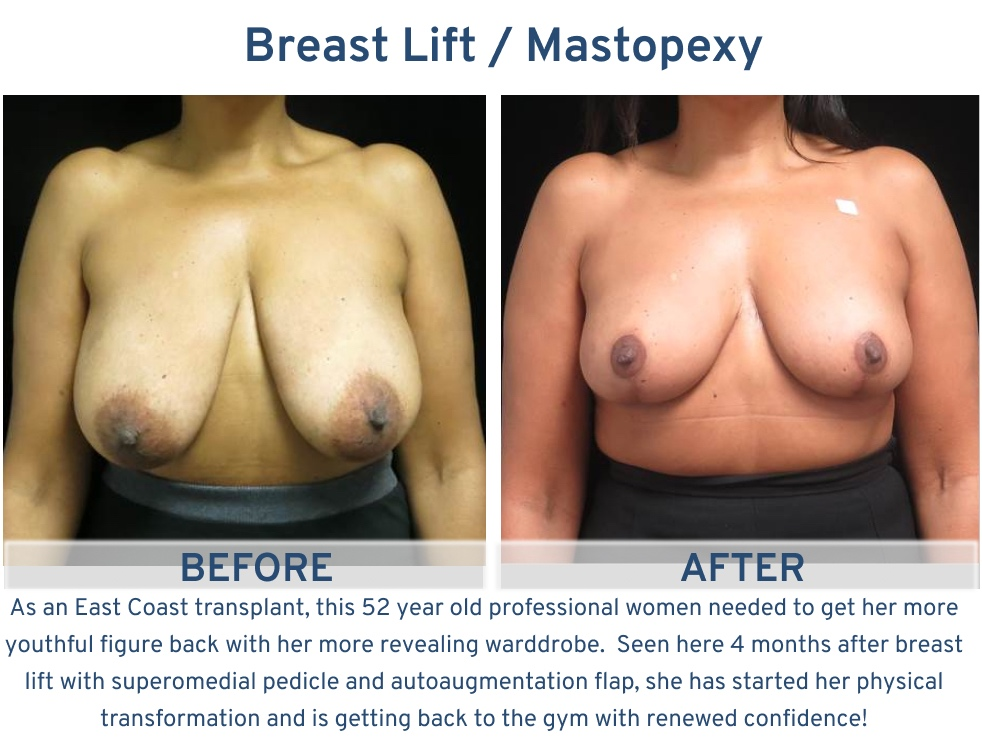 Alamo Plastic Surgery San Antonio TX Breast Lift (Mastopexy) - 52 year old back in the gym