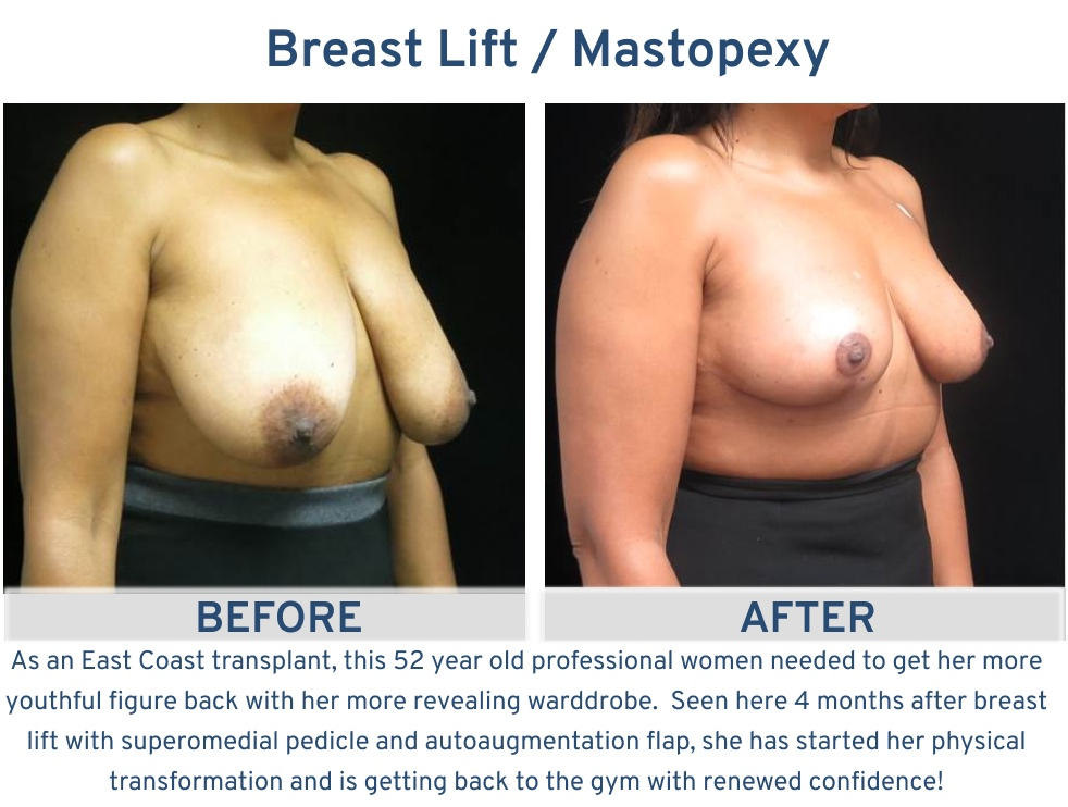Alamo Plastic Surgery San Antonio TX Breast Lift (Mastopexy) - 52 year old back in the gym oblique