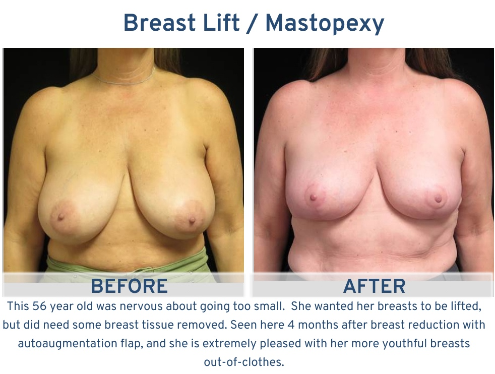 Alamo Plastic Surgery San Antonio TX Breast Lift (Mastopexy) - 56 year old breast tissue removal and lift