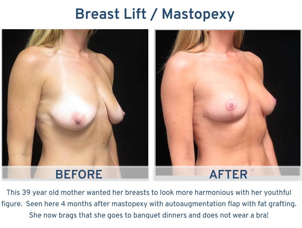 Alamo Plastic Surgery San Antonio TX Breast Lift (Mastopexy) - 39 year old now goes without bra