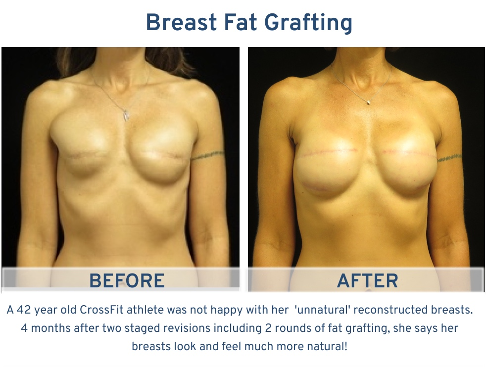 Alamo Plastic Surgery San Antonio TX Breast Fat Graft - 42 year old Crossfit Athlete