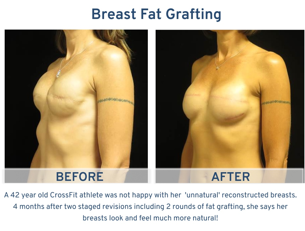 Alamo Plastic Surgery San Antonio TX Breast Fat Graft - 42 year old Crossfit Athlete oblique