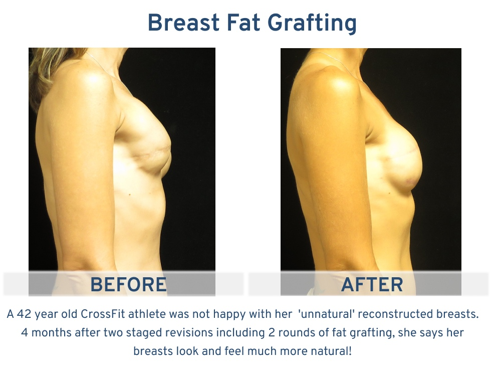 Alamo Plastic Surgery San Antonio TX Breast Fat Graft - 42 year old Crossfit Athlete side