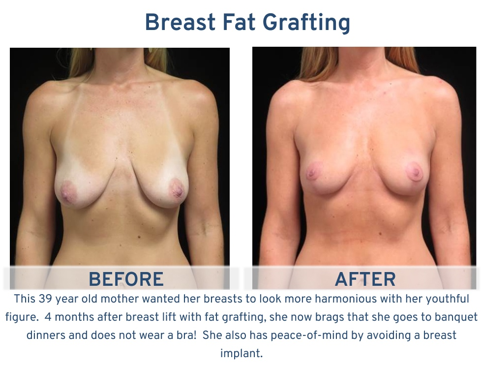 Alamo Plastic Surgery San Antonio TX Breast Fat Graft - 39 yearl old not wearing bra