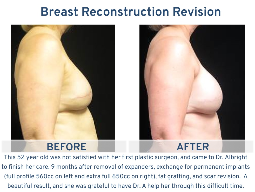 Alamo Plastic Surgery San Antonio TX Breast Reconstruction Revision - 52 year old removal of expanders and exchange for implants side