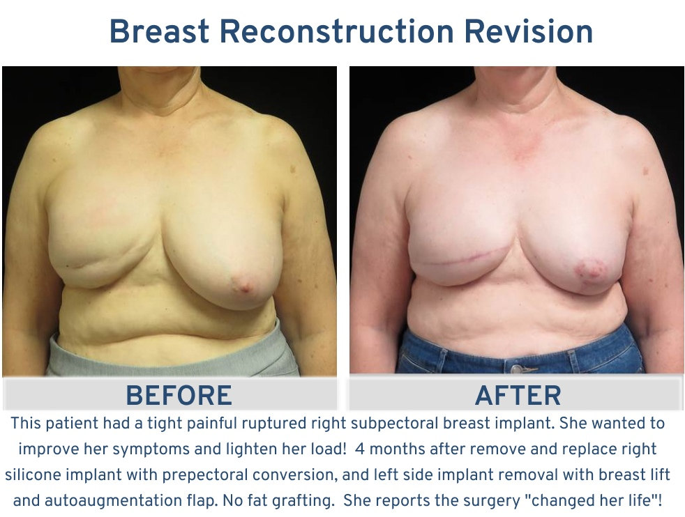 Alamo Plastic Surgery San Antonio TX Breast Reconstruction Revision - Tight painful ruptured breast implant revision