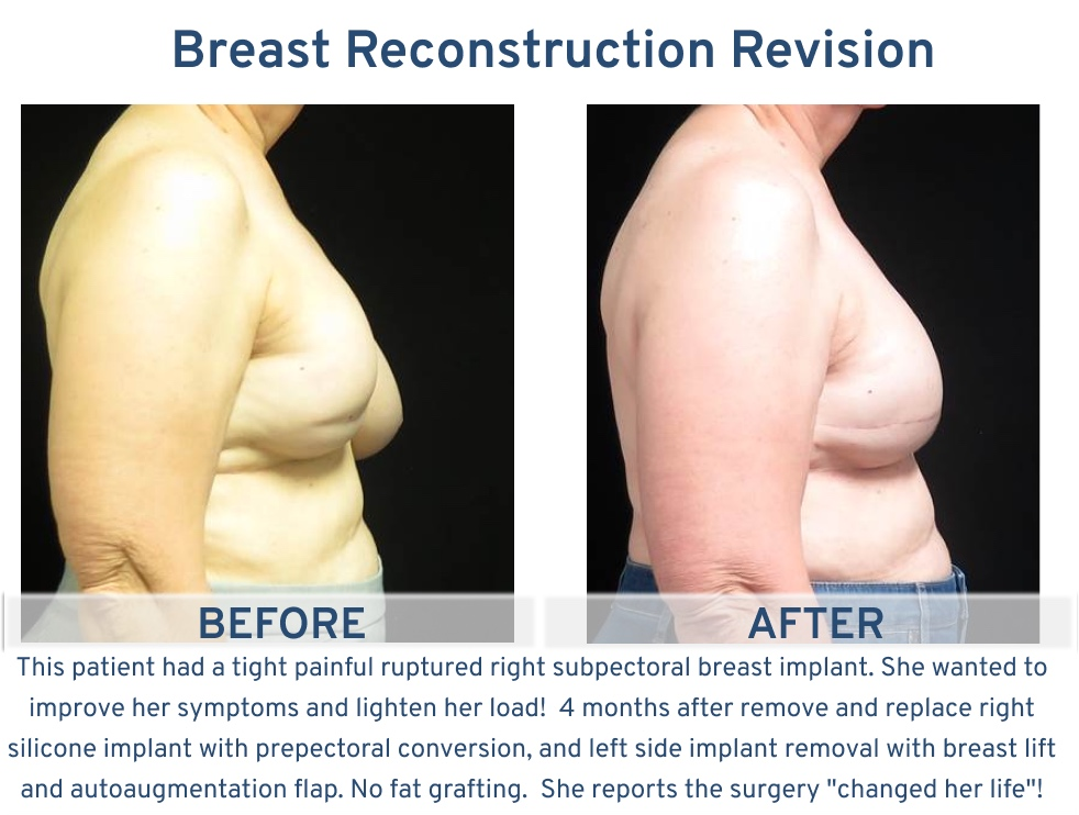 Alamo Plastic Surgery San Antonio TX Breast Reconstruction Revision - Tight painful ruptured breast implant revision side