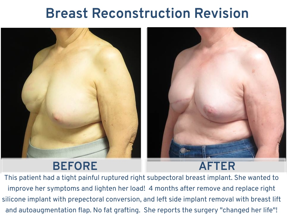 Alamo Plastic Surgery San Antonio TX Breast Reconstruction Revision - Tight ruptured breast implant revision