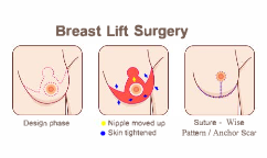 Breast Lift Surgery - Anchor Scar / Wise Pattern