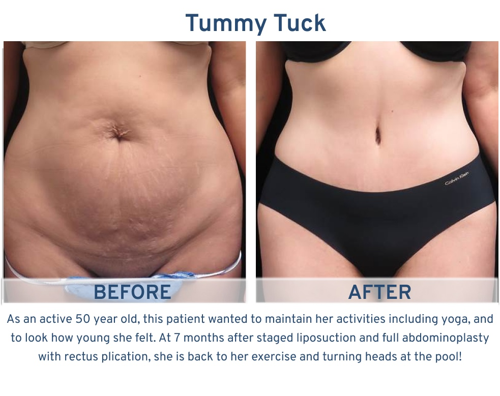 Tummy Tuck San Antonio TX - 50 year old yogi Tummy Tuck front
