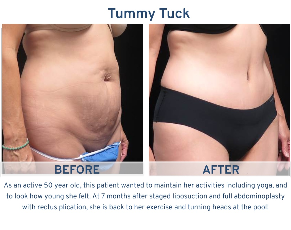 Tummy Tuck San Antonio TX - 50 year old active tummy tuck side
