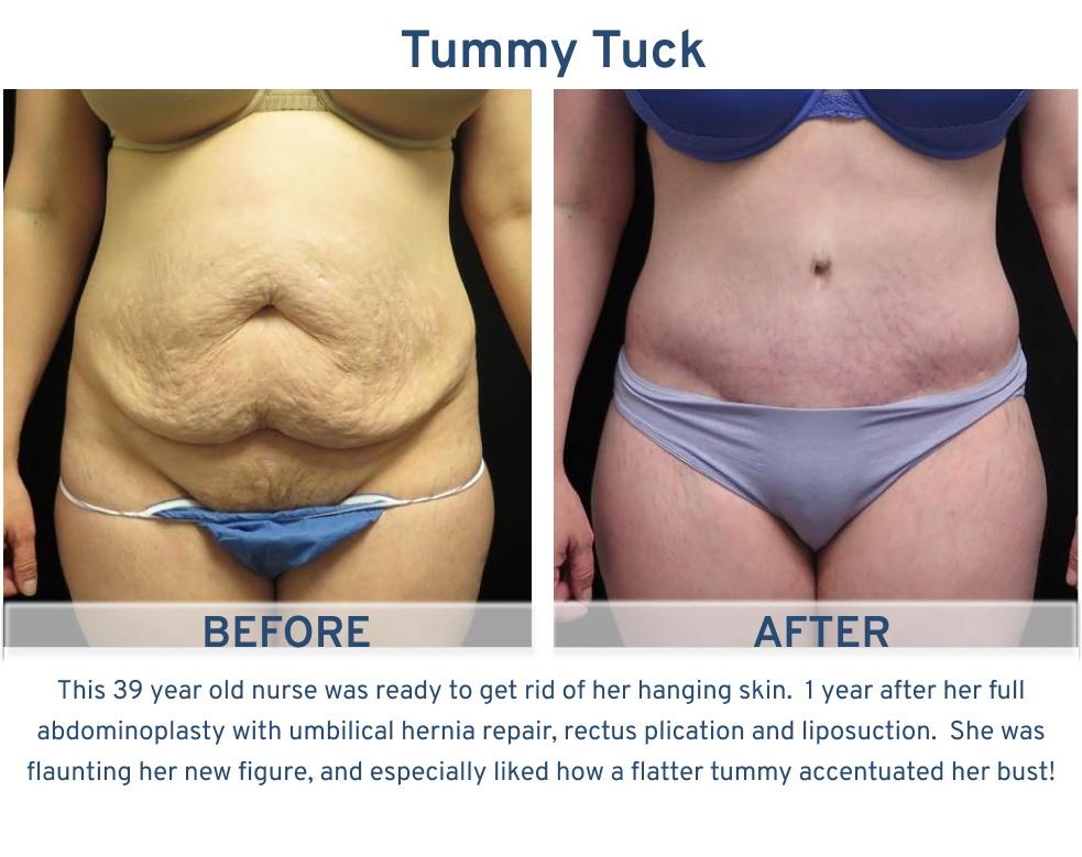 Tummy Tuck San Antonio TX - 39 year old nurse Tummy Tuck front