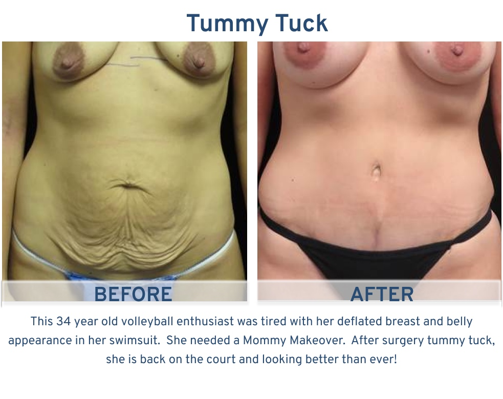 Tummy Tuck San Antonio TX - 34 year old volleyball player Tummy Tuck front