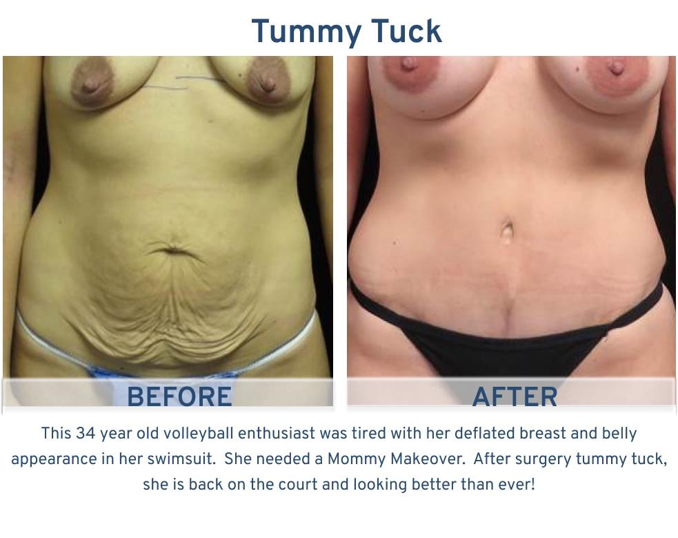 Tummy Tuck San Antonio TX - 34 year old volleyball player Tummy Tuck front