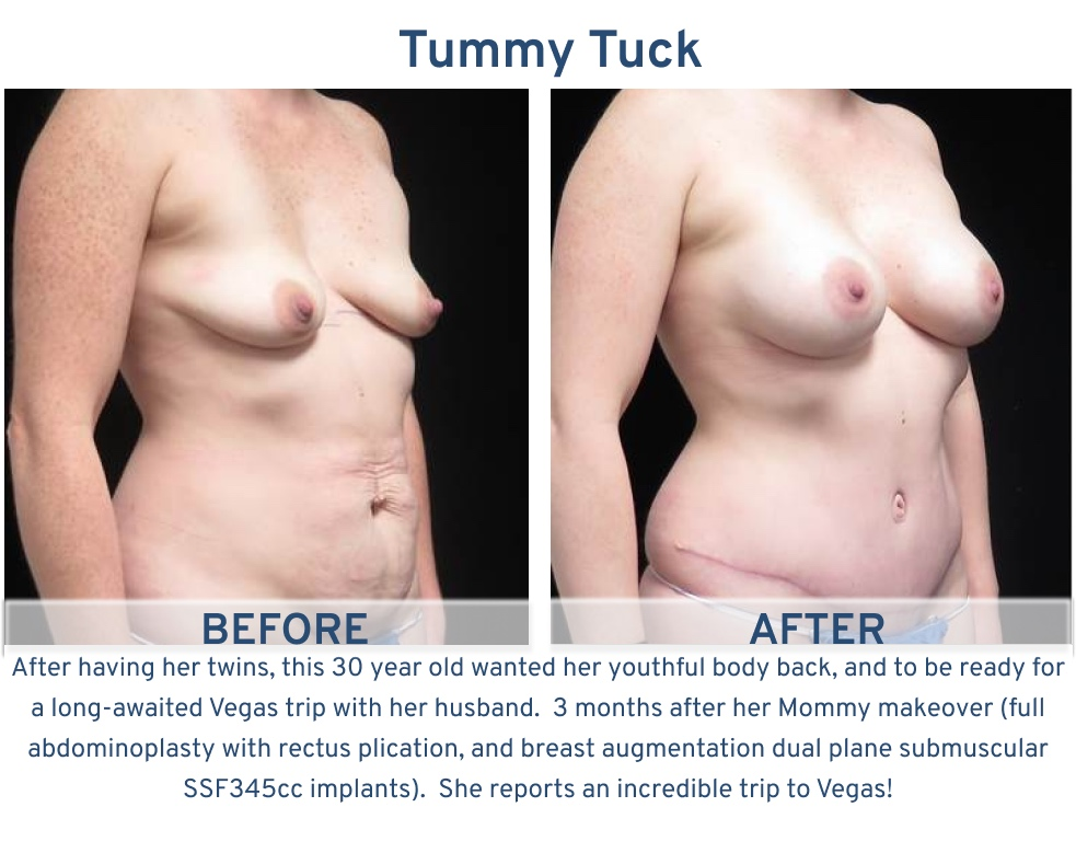 Tummy Tuck San Antonio TX - 30 year old mother of twins Tummy Tuck oblique