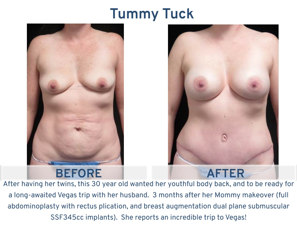 Tummy Tuck San Antonio TX - 30 year old mother of twins Tummy Tuck front