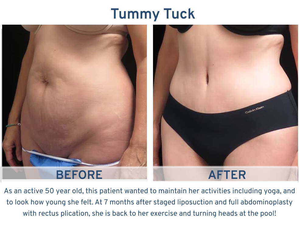 Tummy Tuck San Antonio - 50 year old active lifestyle tummy tuck
