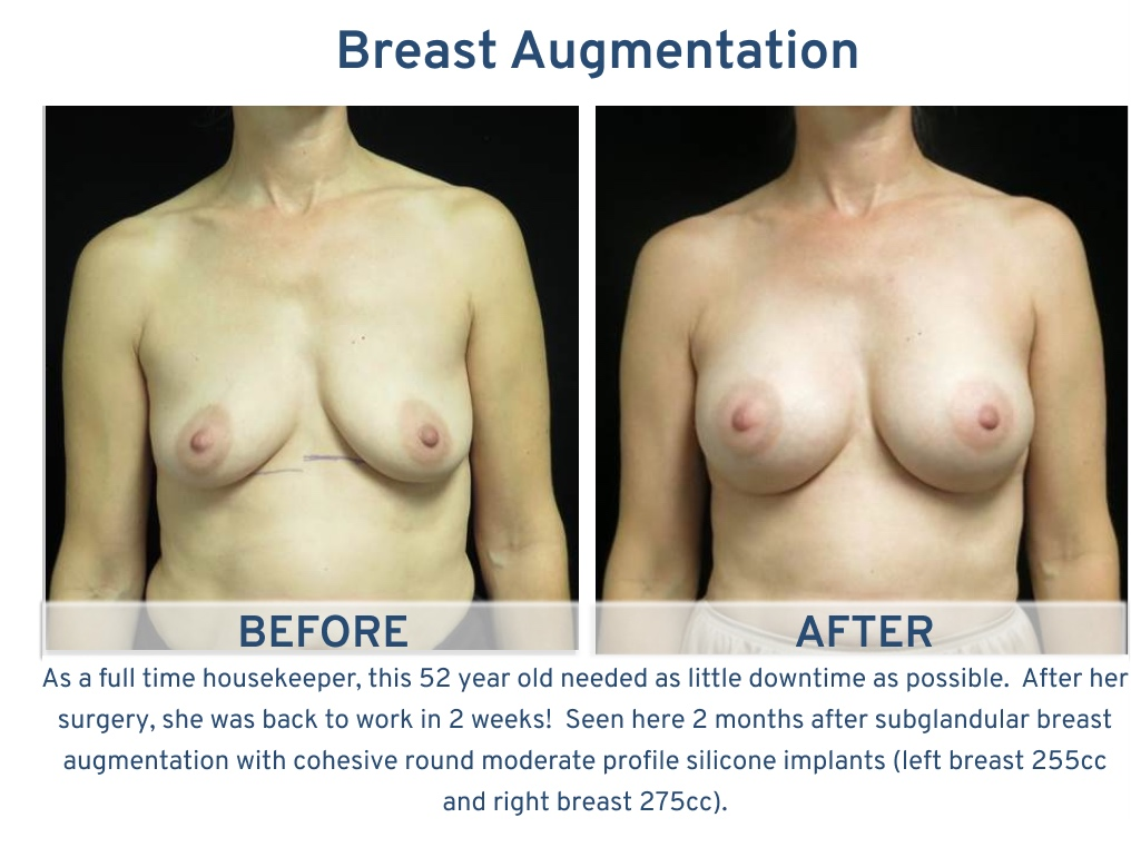 Breast Augmentation San Antonio TX - 52 year old house keeper frontal