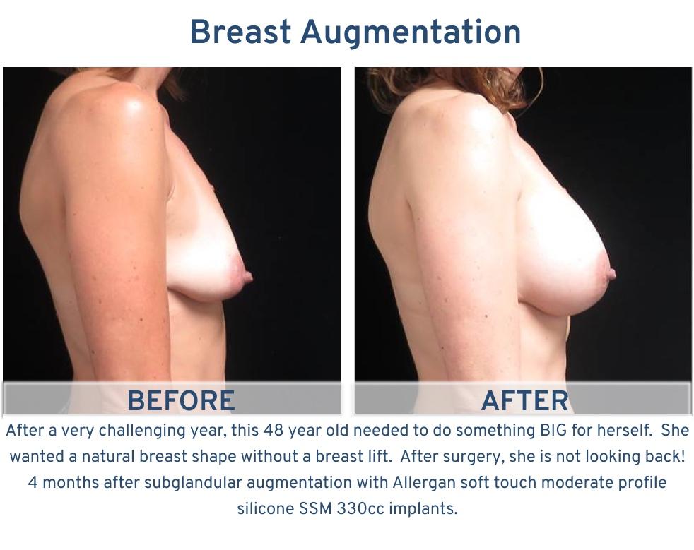 Breast Augmentation San Antonio TX - 48 year old something for herself breast augmentation side