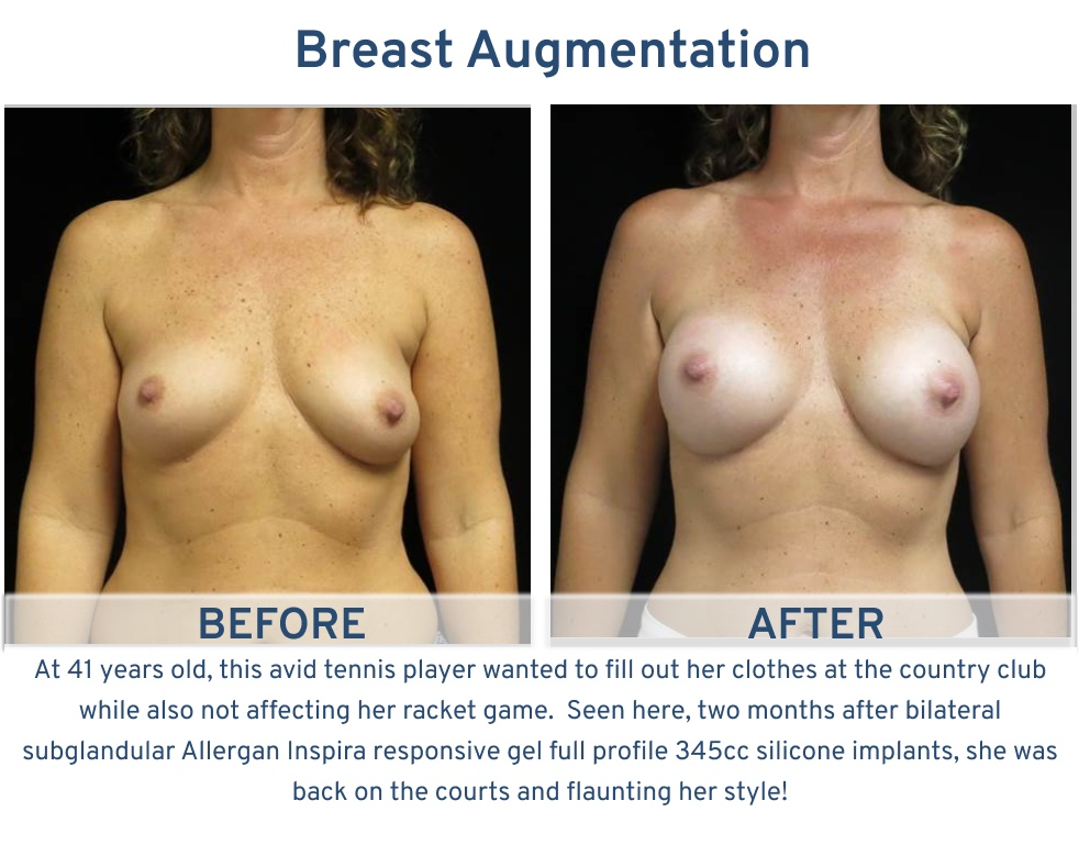 Breast Augmentation San Antonio TX - 41 year old avid tennis player frontal