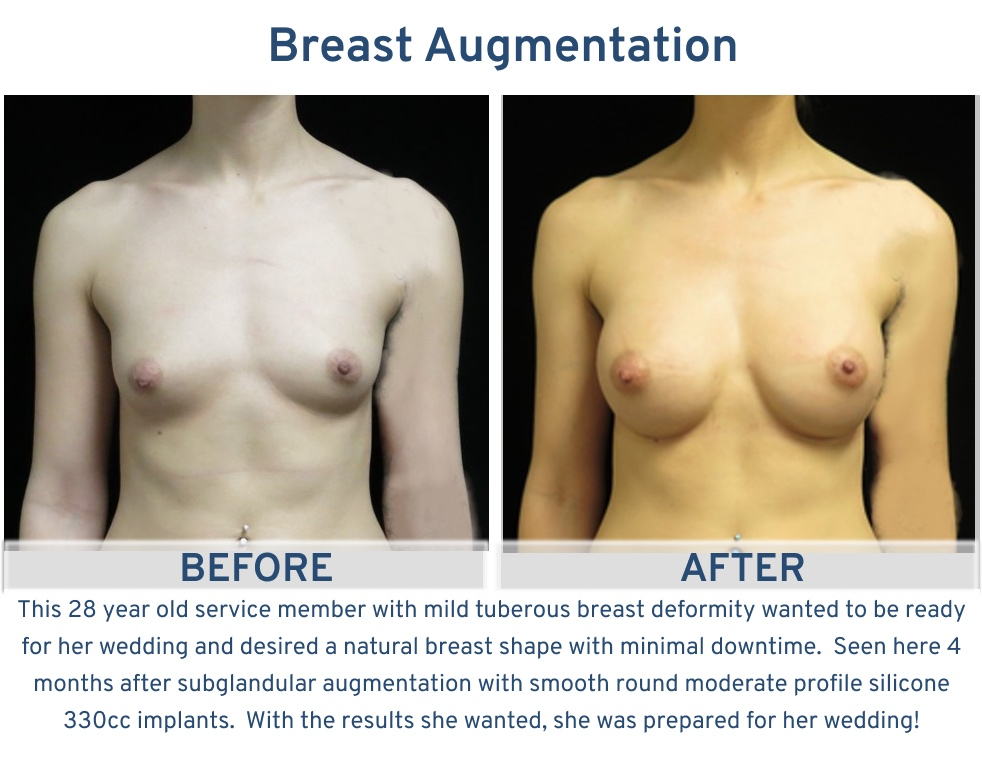 Breast Augmentation San Antonio TX - 28 year old service member with mild tuberous breast deformity frontal
