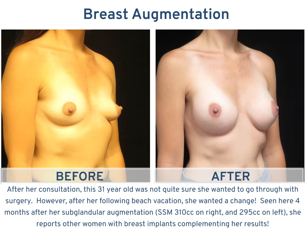 Breast Augmentation San Antonio TX - 31 year old ready for beach vacation left oblique