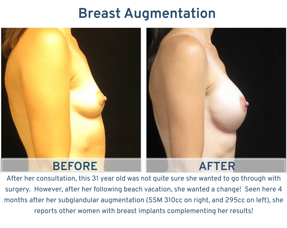 Breast Augmentation San Antonio TX - 31 year old ready for beach vacation side