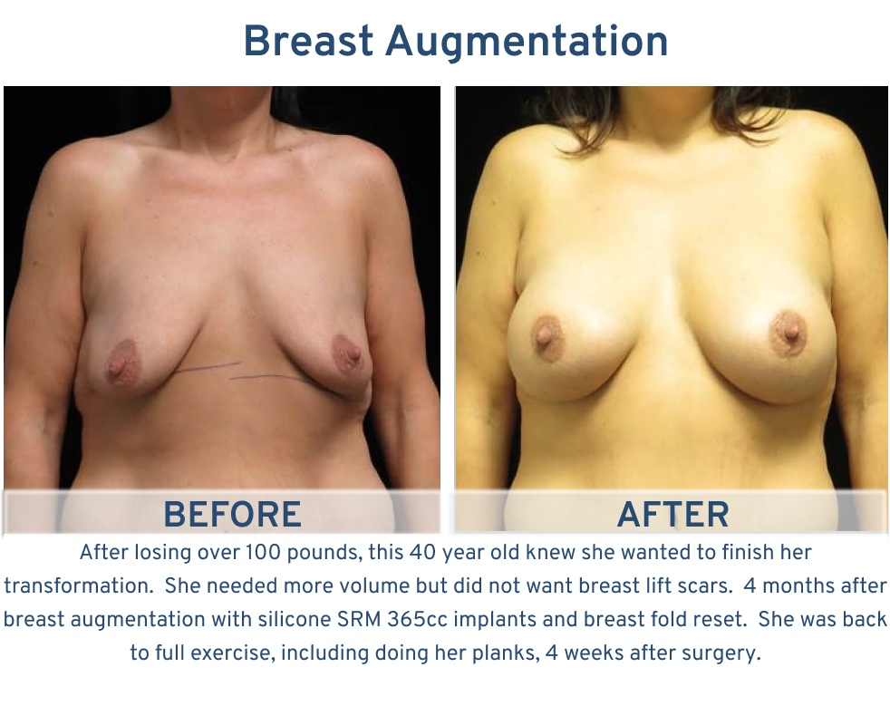 Breast Augmentation San Antonio TX - 40 year old 100 lb weight loss breast augmentation frontal