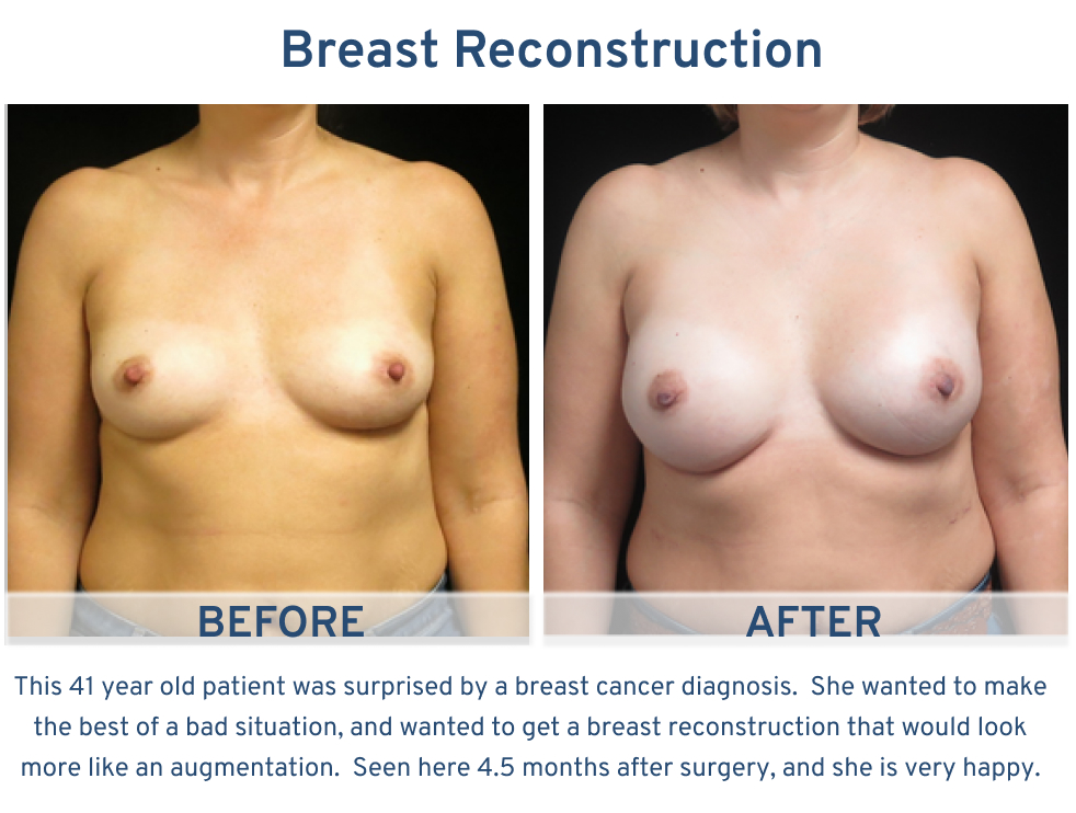 Alamo Plastic Surgery Breast Reconstruction San Antonio, TX - 41 year old with breast reconstruction augmentation frontal