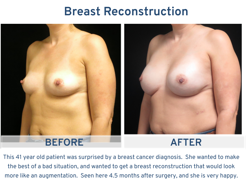 Alamo Plastic Surgery Breast Reconstruction San Antonio TX - 41 year old with breast reconstruction like breast augmentation