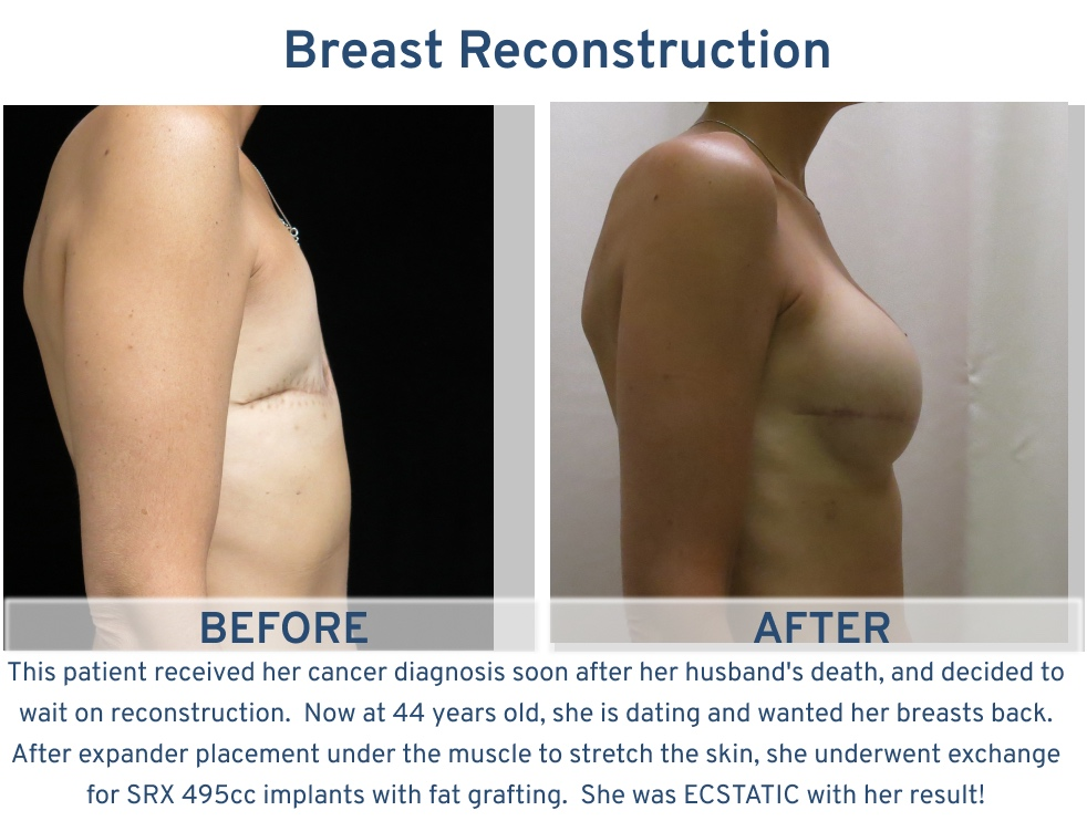 Alamo Plastic Surgery Breast Reconstruction San Antonio TX - 44 year old ecstatic side