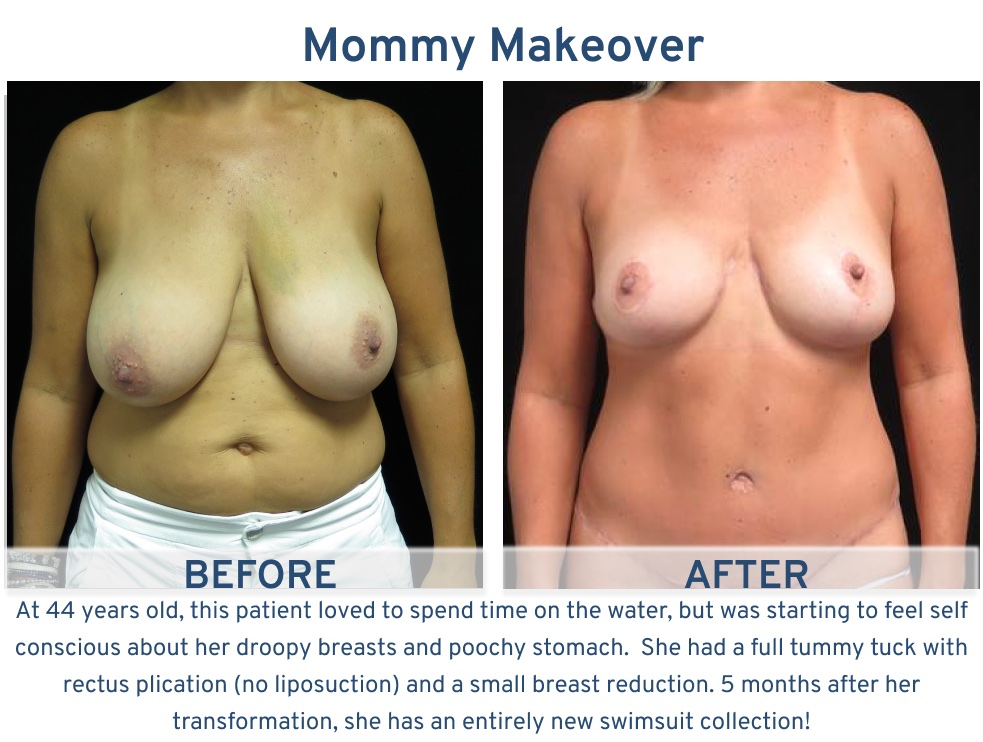 Alamo Plastic Surgery San Antonio Mommy Makeover - 44 year old on water