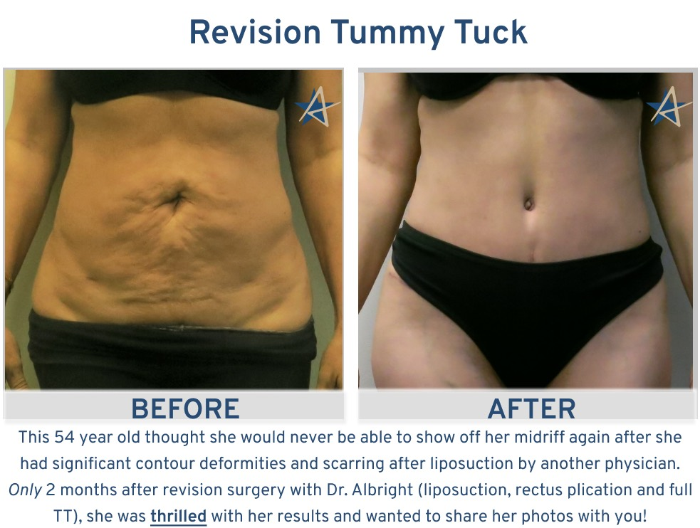 Alamo Plastic Surgery San Antonio Tummy Tuck - After liposuction tummy tuck for 54 year old woman
