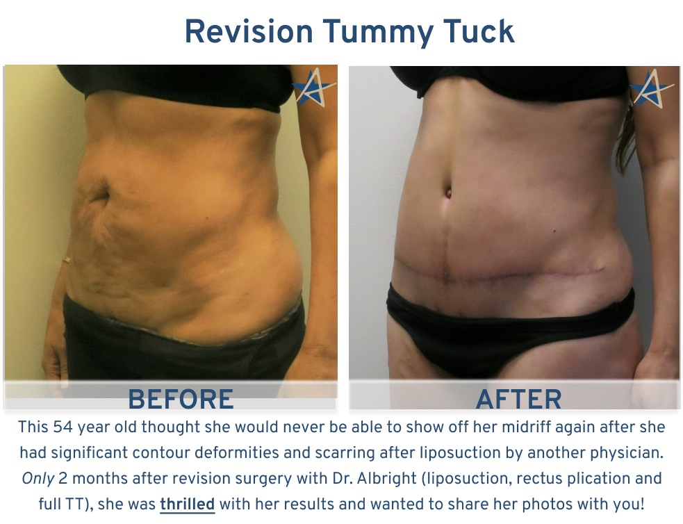 Alamo Plastic Surgery San Antonio Tummy Tuck - 54 year old revision after lip