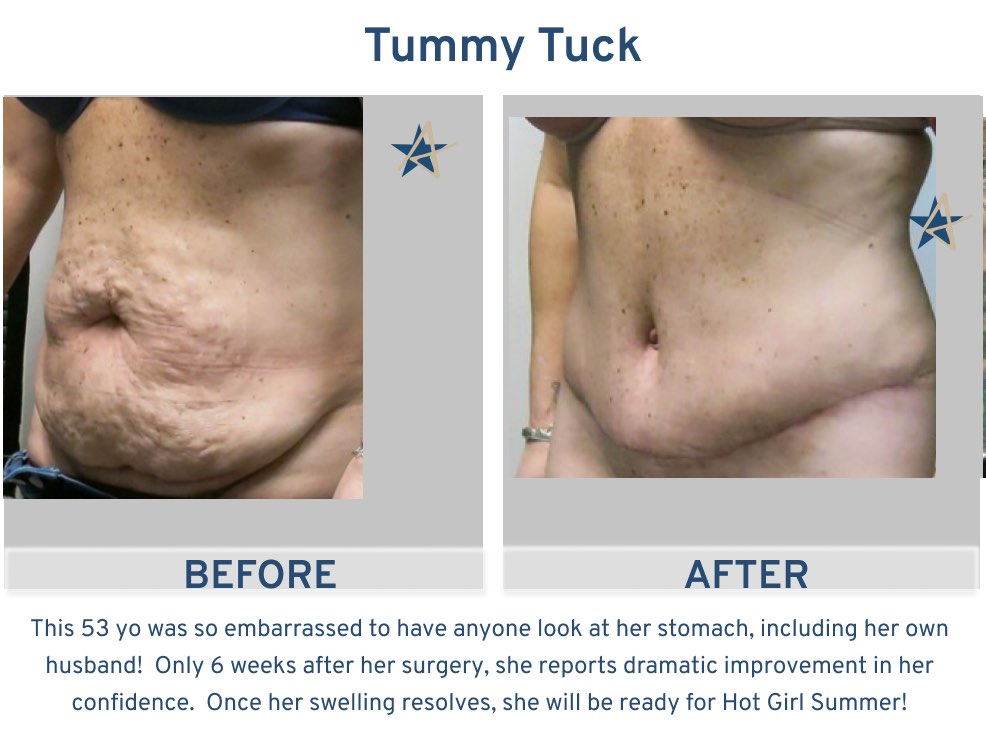 Alamo Plastic Surgery San Antonio TX Tummy Tuck 53 year old hot girl summer