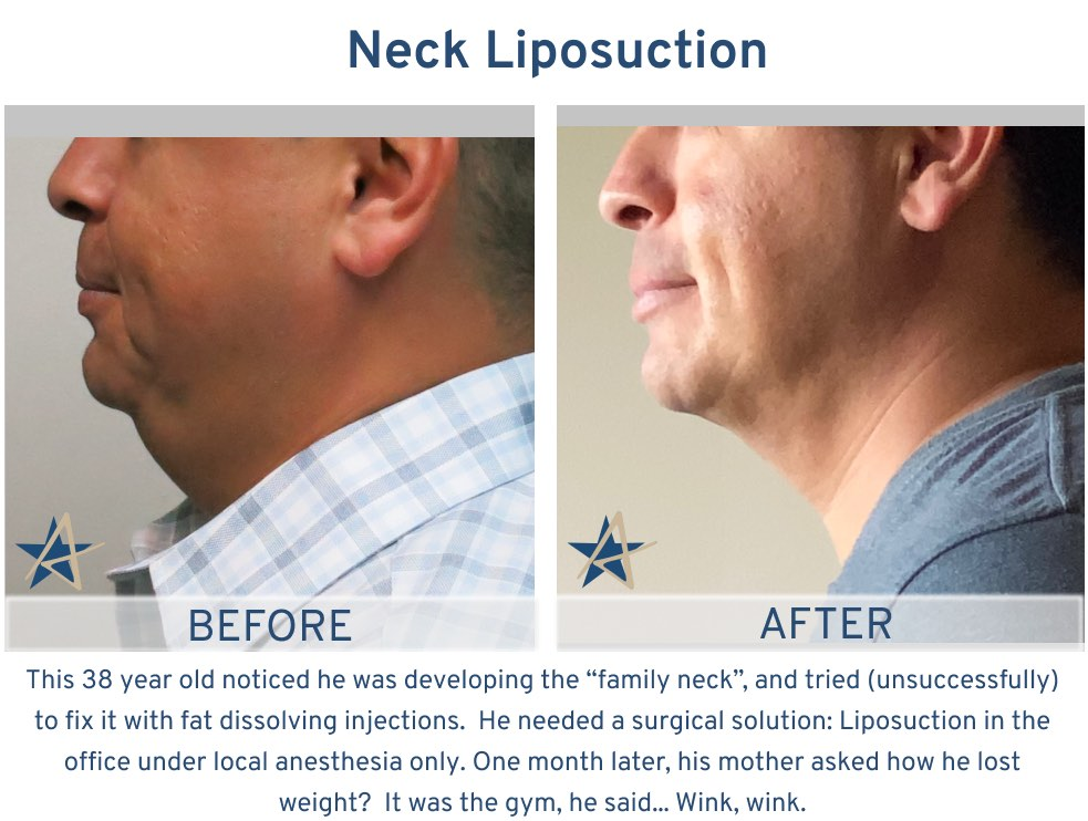 Neck Lift Liposuction Neck - 38 year old family neck