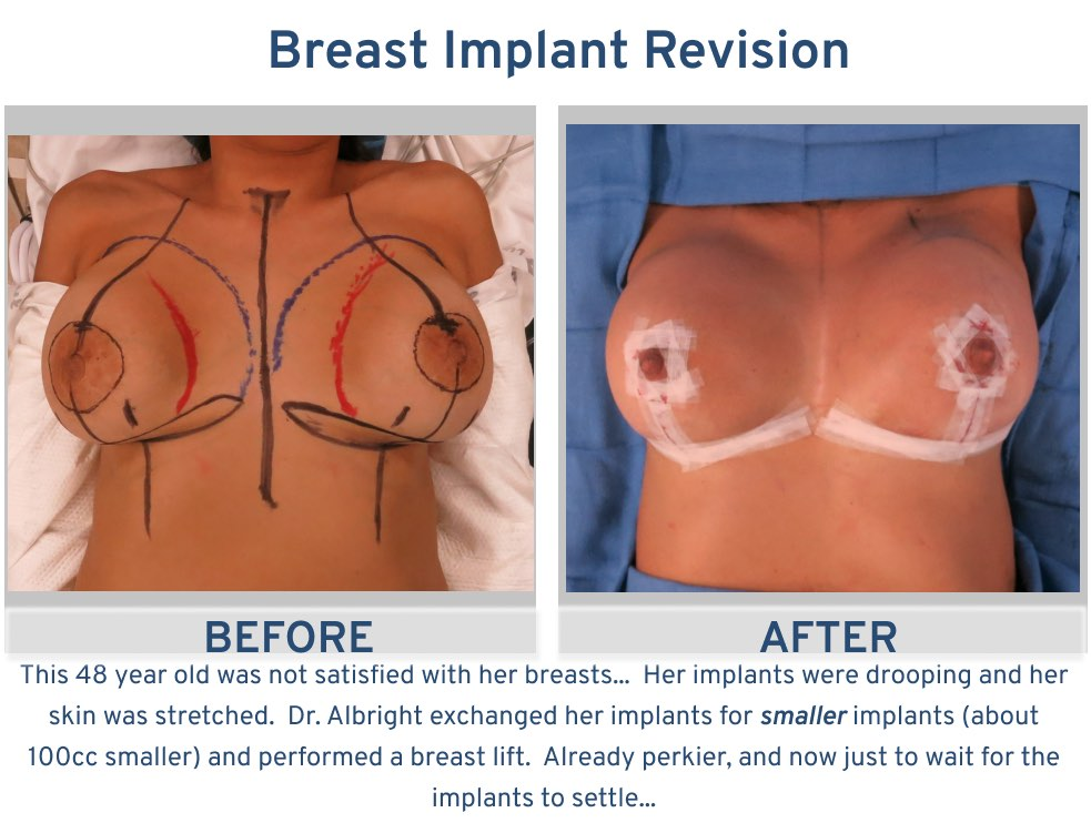 Breast Implant Revision 48 year old - drooping implants frontal