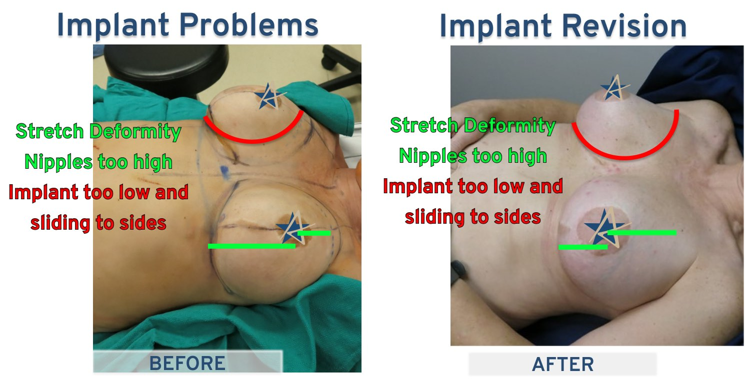On the table Implant Problems