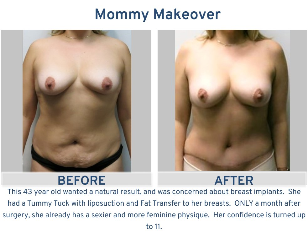 Mommy Makeover 43 year old with fat transfer to breasts