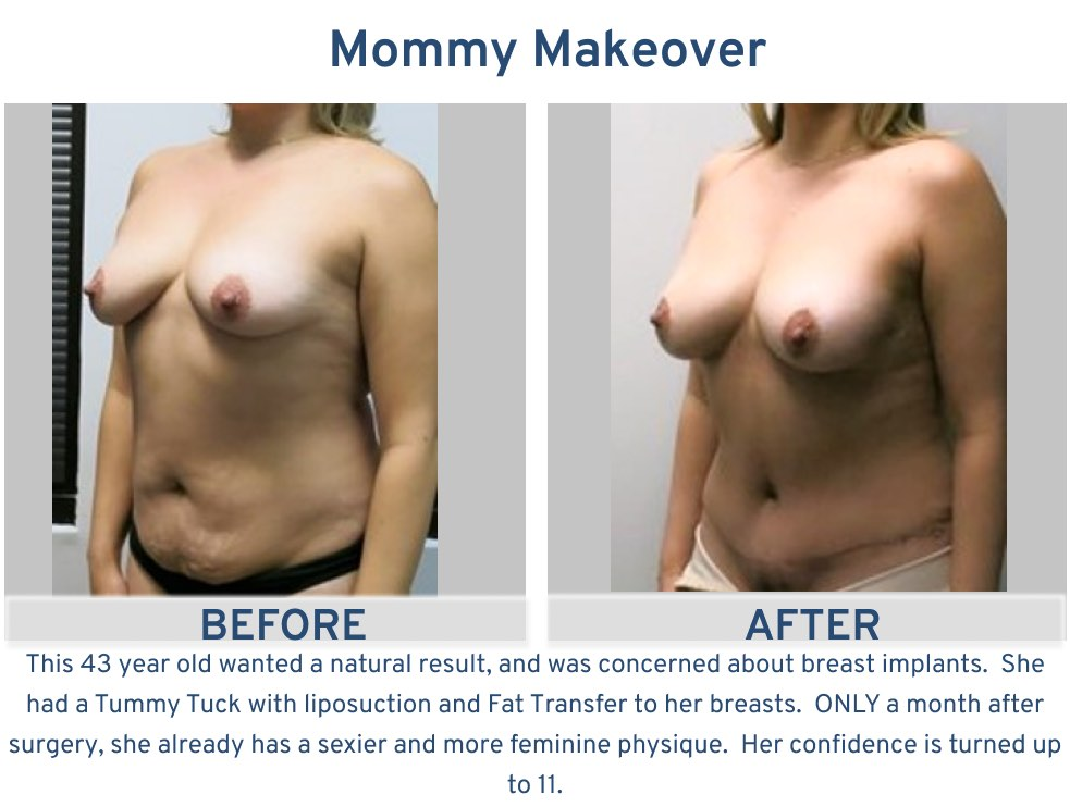 Mommy Makeover 43 year old with fat transfer to breasts side