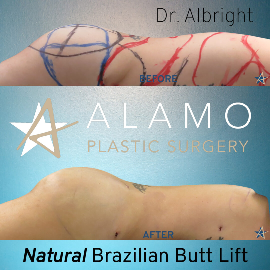 Butt Fat Transfer Natural Side
